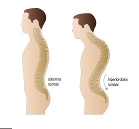 Osteopatia padel padelgood Osteopatía de pubis en pádel