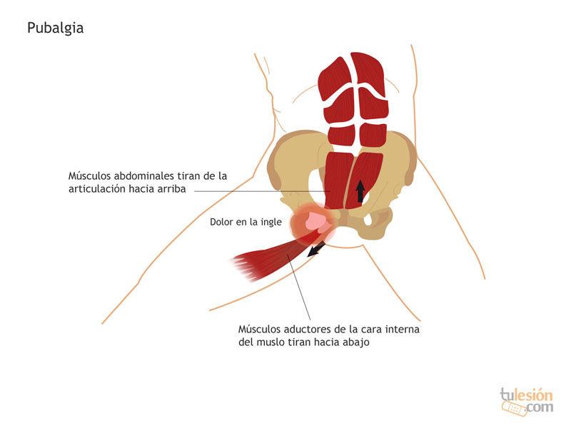 Osteopatía de pubis en padel